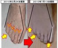 外反母趾のお客様の足(5か月後)